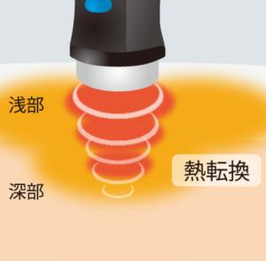 超音波の仕組み
